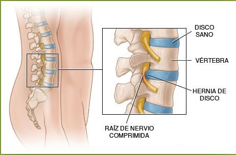 Hacer mrt sheynogo del departamento de la columna vertebral en krasnodare